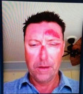 File Photo: Mystery surrounds the events of the night Allenby claims he was assaulted after witnesses contradicted his claims.