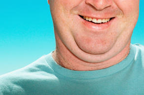 Man with double chin