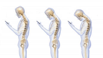 This is How Texting Ruins Your Spine