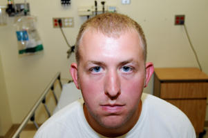 This undated photo released by the St. Louis County Prosecuting Attorney's office on Monday, Nov. 24, 2014, shows Ferguson police officer Darren Wilson during his medical examination after he fatally shot Michael Brown, in Ferguson, Mo. According to a medical record released as part of the evidence presented to the grand jury that declined to indict Wilson in the fatal shooting, doctors diagnosed Wilson with a facial contusion.