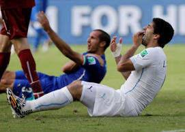Uruguay's Luis Suarez holds his teeth after biting Italy's Giorgio Chiellini's their World Cup fixture on June 24. Suarez was subsequently banned from football for four months.