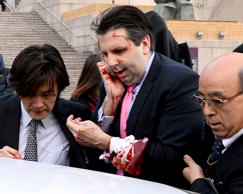 U.S. Ambassador to South Korea Mark Lippert is injured by a blade-wielding