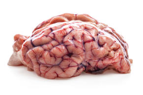 Sheep's brain. iStock/Getty Images