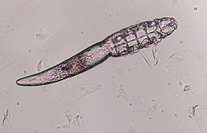 Demodex mite in the institute for parasitology of the Ludwig-Maximilians-University Munich on November 26, 2003 in Munich, Germany. Agency-Animal-Picture/Getty Images
