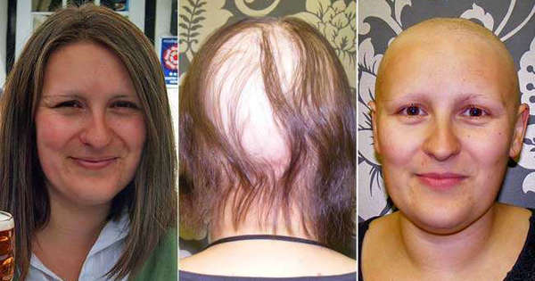 Making A Bald Statement For Children Cancer Patients